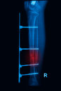 Leg x-rays image showing plate and screw Royalty Free Stock Images