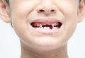 Little boy smiling show toothless dental care Royalty Free Stock Photo