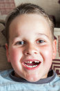 Little boy with a torn front first milk tooth Royalty Free Stock Photo