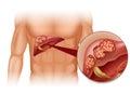 Hígado cáncer en hombre