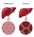 Liver Cirrhosis Royalty Free Stock Photos