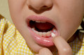 Loose tooth little girl showing her baby Royalty Free Stock Photography