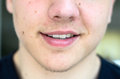 Lower face of a young man with lips ajar Royalty Free Stock Photo