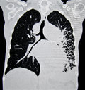 Lung cancer ct front computed tomography image with huge tumor on the right side of picture metaphor on tobacco smoking hazard Stock Image