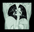 Lung cancer ( CT scan of chest and abdomen : show right lung cancer ) ( Coronal plane ) Royalty Free Stock Photo