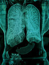 Lungs, CT Royalty Free Stock Photo