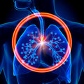 Lungs Foreign Object - Inhaled...