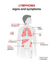 Lymphoma. Signs and symptoms