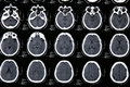 Magnetic resonance of a brain Royalty Free Stock Image