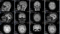 Magnetic resonance image of a brain Royalty Free Stock Photo