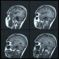 Magnetic resonance image mri of the brain Royalty Free Stock Image