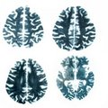 Magnetic resonance (MR) scan brain isolated Stock Photography
