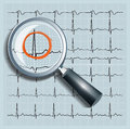 Magnifier over cardiogram search in medicine Stock Photos