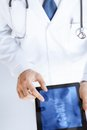 Male doctor holding tablet pc with x ray close up of Stock Image