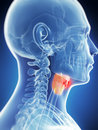 Male larynx - cancer Stock Images