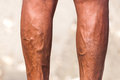 Male legs varices lower extremity disease with detail varicoses a varix is an abnormally dilated vessel with a tortuous course Royalty Free Stock Image