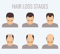 Male pattern baldness stages Royalty Free Stock Photo