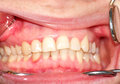 Malocclusion. Curvature of the upper dentition Royalty Free Stock Photo
