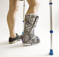 Man with a broken leg with Orthotic Stock Photography