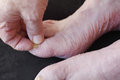 Man with dry skin and toenail fungus a s foot peeling from athlete s foot Stock Photos
