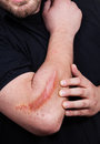 Man with heavy scar on his arm hurt and shows Stock Photos