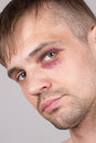 Man with an injured eye. Closeup