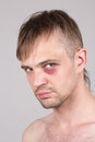 Man with an injured eye. Closeup