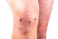 Man knee after arthroscopic surgery with stitches Royalty Free Stock Images