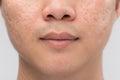 Hombre piel y acné en blanco