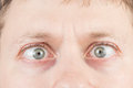 Man's crazy eyes Royalty Free Stock Photo