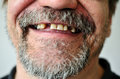 Man s face with a smiling toothless part of Stock Image