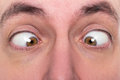 Man is squinting, closeup, concept strabismus Royalty Free Stock Photo