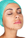 Marking for cosmetic plastic surgery Royalty Free Stock Image