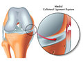 Medial collateral ligament rupture medical illustration of Royalty Free Stock Photos