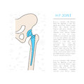 Medical illustration hip joint