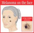 Melanoma on the cheek Royalty Free Stock Photo