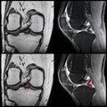 Meniscal tear, knee, MRI Royalty Free Stock Photo