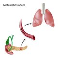Metastatic cancer Stock Image