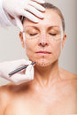 Middle aged woman correction lines preparing plastic surgery Royalty Free Stock Image