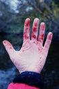 Minor trauma to wrist, coagulated blood, withered skin, toned