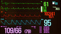 Monitor Showing Intraventricular Conduction Delay and Vital Signs Royalty Free Stock Photo