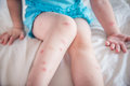 Mosquito bites sore and scar on child legs Royalty Free Stock Photo