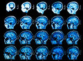 MRI Brain Scan Royalty Free Stock Photo