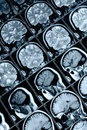 MRI the brain X-ray Royalty Free Stock Photos
