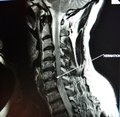 Mri of cervical spine stenosis Royalty Free Stock Photo
