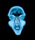 Mri head magnetic resonance image of the scan Royalty Free Stock Photos