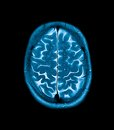 Mri head magnetic resonance image of the scan Stock Photo