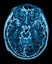 Mri head magnetic resonance image of the scan Stock Images