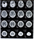 Mri image of the brain name patient and hospital have been wiped Stock Image