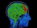 MRI Image Of Head Showing Brain Royalty Free Stock Photo